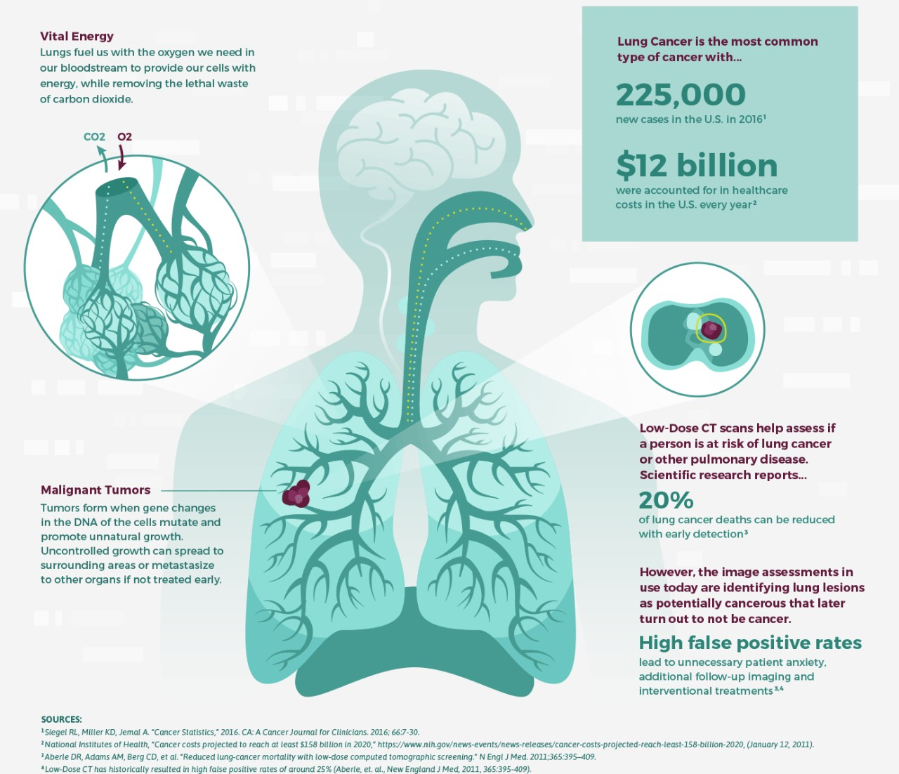data science bowl lung cancer illustrated inforgraphic